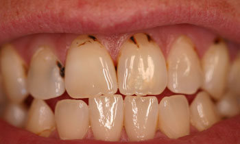 Bonded Fillings